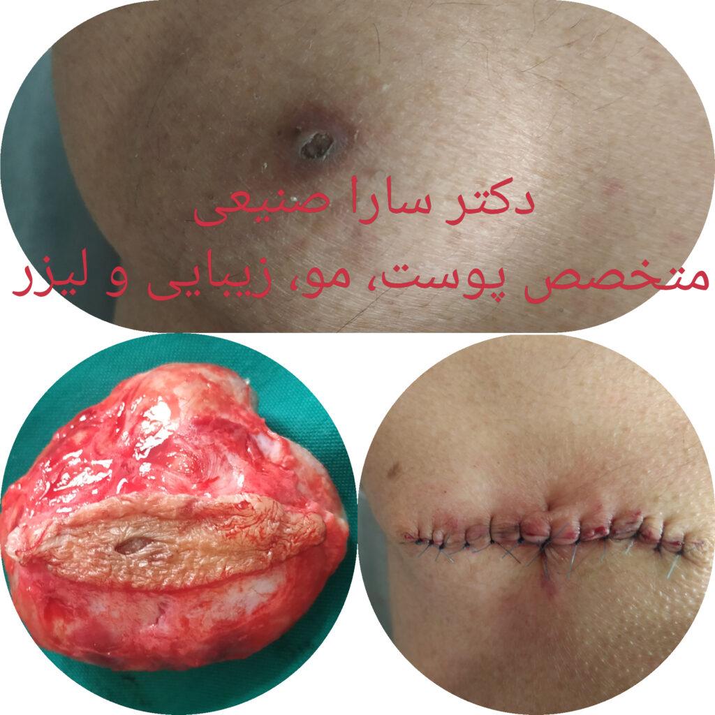 جراحی کیست پوست